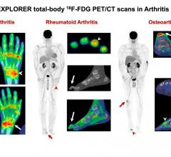 Left: Total-body PET/CT in psoriatic arthritis: multiple joints affected, shoulders, elbows, wrists, knees, ankles and small joints of the hands/feet. Arrow: left wrist; arrowhead: right wrist. Middle: Total-body PET/CT in rheumatoid arthritis: multiple joints affected, right shoulder, small joints of the left hand. Arrowhead at the 4th proximal interphalangeal joint shows classic ring-like uptake pattern. Arrow on the foot images demonstrates the hammer toe deformity besides big toe arthritis. Right: Total