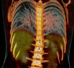 PET/CT, lung cancer, follow-up, tumor tracking, nuclear imaging, trial