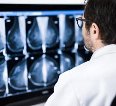 Computers Equal Radiologists in Assessing Breast Density and Associated Breast Cancer Risk