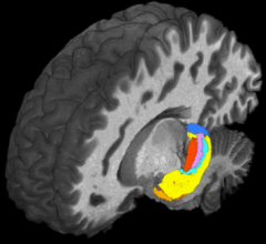 Using ultra-high field magnetic resonance imaging (MRI) to map the brains of people with #Down_syndrome (#DS), #researchers from #CaseWesternReserveUniversity, #ClevelandClinic, University Hospitals and other institutions detected subtle differences in the structure and function of the #hippocampus—a region of the #brain tied to memory and learning.