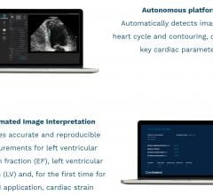 EchoGo uses artificial intelligence (AI) to calculate cardiac ultrasound left ventricular ejection fraction (EF), the most frequently used measurement of heart function, left ventricular volumes (LV) and, for the first time for an AI application, automated cardiac strain.