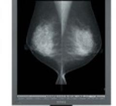 U.S. Electronics Inc. MS35i2 Grayscale Diagnostic Monitor Mammography