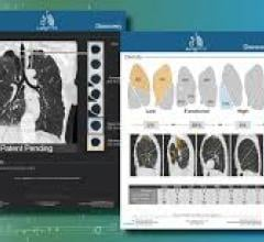 LungPrint Discovery offers fully automatic radiological metrics and unique, time-saving airway visualizations