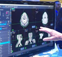 MD Anderson and Varian Partner to Optimize Radiation Oncology Treatment