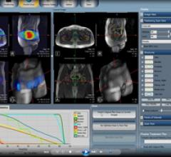 FDA Clears MRI-Guided Radiation Therapy System