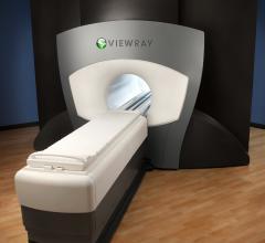 viewray mri systems radiation therapy