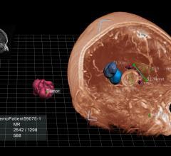 EchoPixel, True 3D Viewer, Quadro K4200, FDA