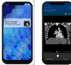 An example of Viz.AI's pulmonary embolism AI application and mobile alert to the physician on-call. Viz.AI and Avicenna.AI Partner to Launch Artificial Intelligence Care Coordination for Pulmonary Embolism and Aortic Disease