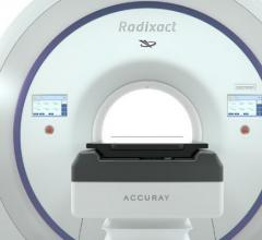 Accuray, Radixact Treatment Delivery Platform, image-guided radiation therapy, AAPM, CE Mark