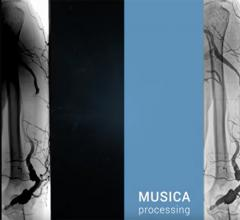 Agfa Healthcare, DR 800 X-ray room, Dynamic MUSICA processing, RSNA 2016, digital radiography