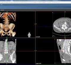 Agfa, Xero Viewer, Full Fidelity, FDA clearance