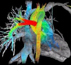 Arterys, Arterys System, ViosWorks, GE Healthcare, MRI, blood flow, RSNA 2015