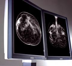 Elizabeth Rafferty, JAMA, tomosynthesis, digital mammography, breast density, cancer detection study