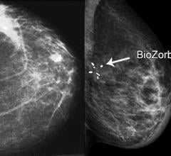 Research Shows Breast Cancer Surgery Marker Associated With Smaller Radiation Volume