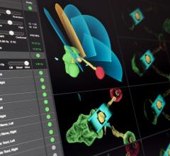 Brainlab, Elements Cranial SRS software, stereotactic radiosurgery, ESTRO 35, radiation therapy