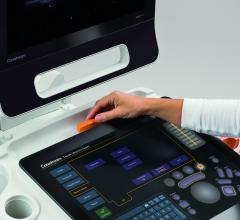 Carestream, Touch Prime XE ultrasound, accepting orders, RSNA 2015