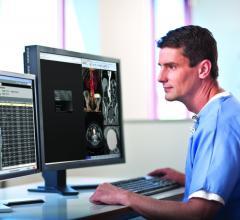 Carestream Health Vue Mammography PACS NHS Scotland