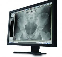 pacs digital radiography dr systems orthopedic imaging rsna 2013 carestream