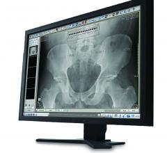Carestream ImageSuite Software Imaging Orthopedic Imaging
