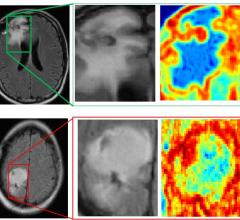 Case Western Reserve University study, machine learning, MRI, brain cancer diagnoses, radiomics
