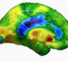 CereScan, Northwest Community Healthcare, NCH, qSPECT, brain imaging software