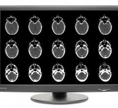 New Dome GX Series Widescreen Radiology Display Now Shipping from NDS Surgical Imaging