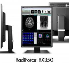 Eizo, RadiForce RX350, Sharpness Recovery technology, 3-megapixel monitor, RSNA 2015