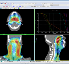 Elekta's Monaco 5 Treatment Planning System to Showcase at AAPM 2014