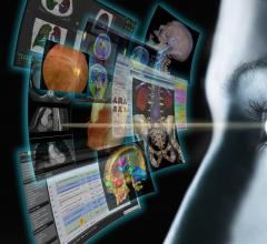RSNA 2013 pacs fujifilm synapse portfolio workstation software dicom ris