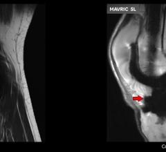 Mavric MRI GE Healthcare