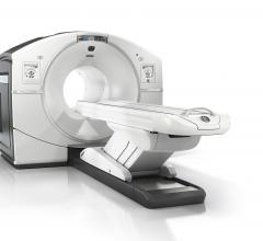 GE Healthcare Announces FDA Clearance of Discovery IQ PET/CT
