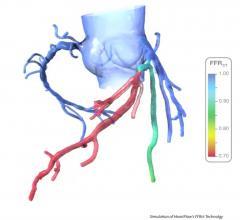 HeartFlow, FFR-CT, ruptured coronary plaques, EMERALD study, EuroPCR 2016