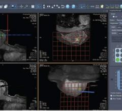 Sentinelle Aegis Offers Real-Time MRI Breast Interventional Guidance