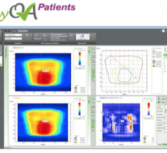 myQA Patients, IBA, quality assurance, radiation therapy, LewisGale Regional