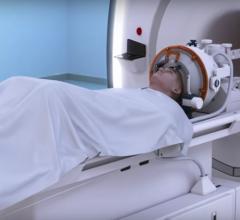 MRI-guided focused ultrasound, ExAblate Neuro, essential tremor, University of Maryland School of Medicine, UM SOM study