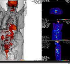 SNMMI Publishes New FDG PET/CT Appropriate Use Criteria