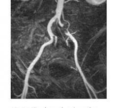 Lantheus Awarded Premier Agreements For Ultrasound, MRI Contrast Agents
