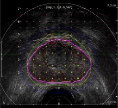 MIM Software, BK Ultrasound, bkFusion, MRI Fusion Biopsy System, prostate cancer, RSNA 2016