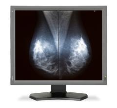 ECOG-ACRIN, TMIST, Tomosynthesis Mammography Imaging Screening Trial, site recruitment, RSNA 2016