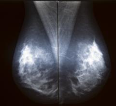 Novarad, NovaMG, mammography viewer, NovaPACS