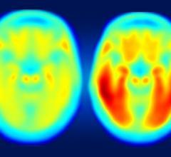 tau protein, Alzheimer's, PET scan, imaging agent, brain decline, Washington University in St. Louis