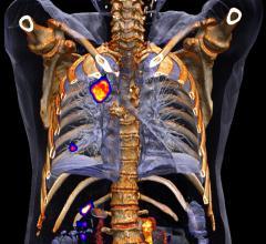 China, computed bioconductance, CB, PET, positron emission tomography, lung lesions