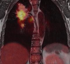 PET scans, lung cancer survivors, overuse, national study