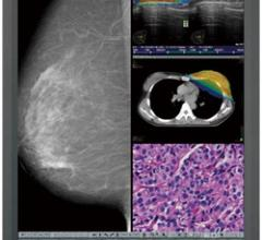 Quest International, Totoku CCL550i2 diagnostic display, FFDM approval, full-field digital mammography, breast imaging applications