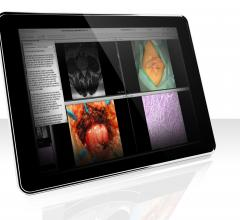 Vital Images, VitreaView universal viewer, integration, Nuance PowerShare