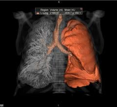 Vital, Vitrea Lung CT Analysis, Nuance PowerScribe 360, PenRad PenLung, RSNA 2016