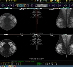 Viztek, Exa Mammo Viewer, breast imaging management workstation, RSNA 2015