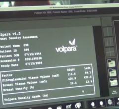 Volpara, VolparaDensity, version 3.0, RSNA 2014