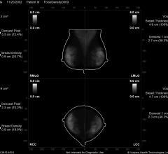 Frost & Sullivan, Volpara Solutions, 2016 award, breast density