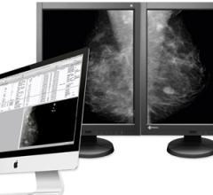 aycan, Mammography Workstation, Eizo monitors